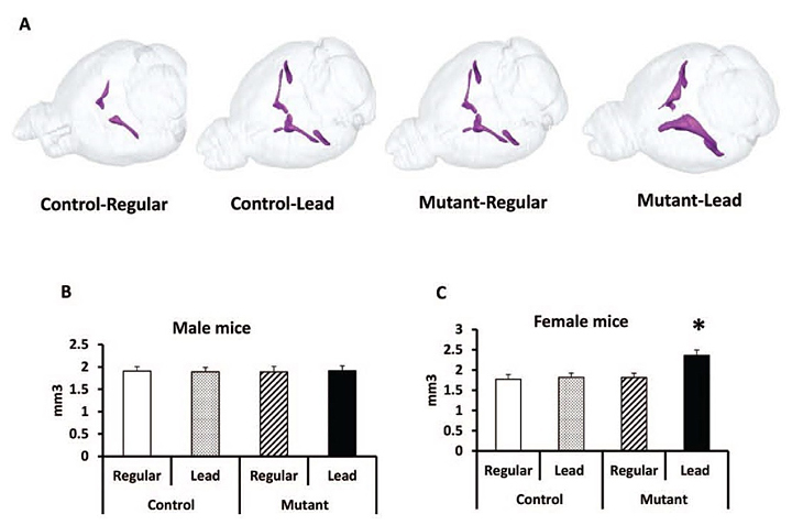 Graphic showing MRI studies of brain volume effects of gene-environment interaction