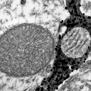 Black and white image of mitochondria
