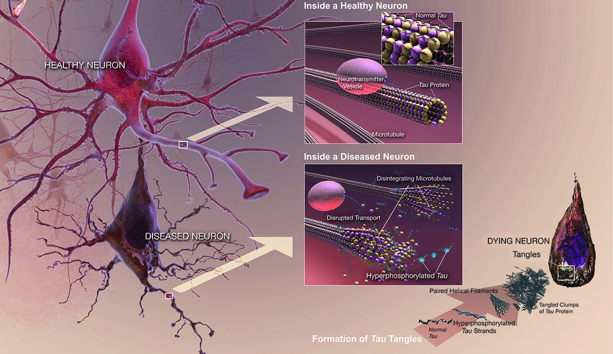 Figure illustrating the differences between a healthy neuron and a diseased neuron