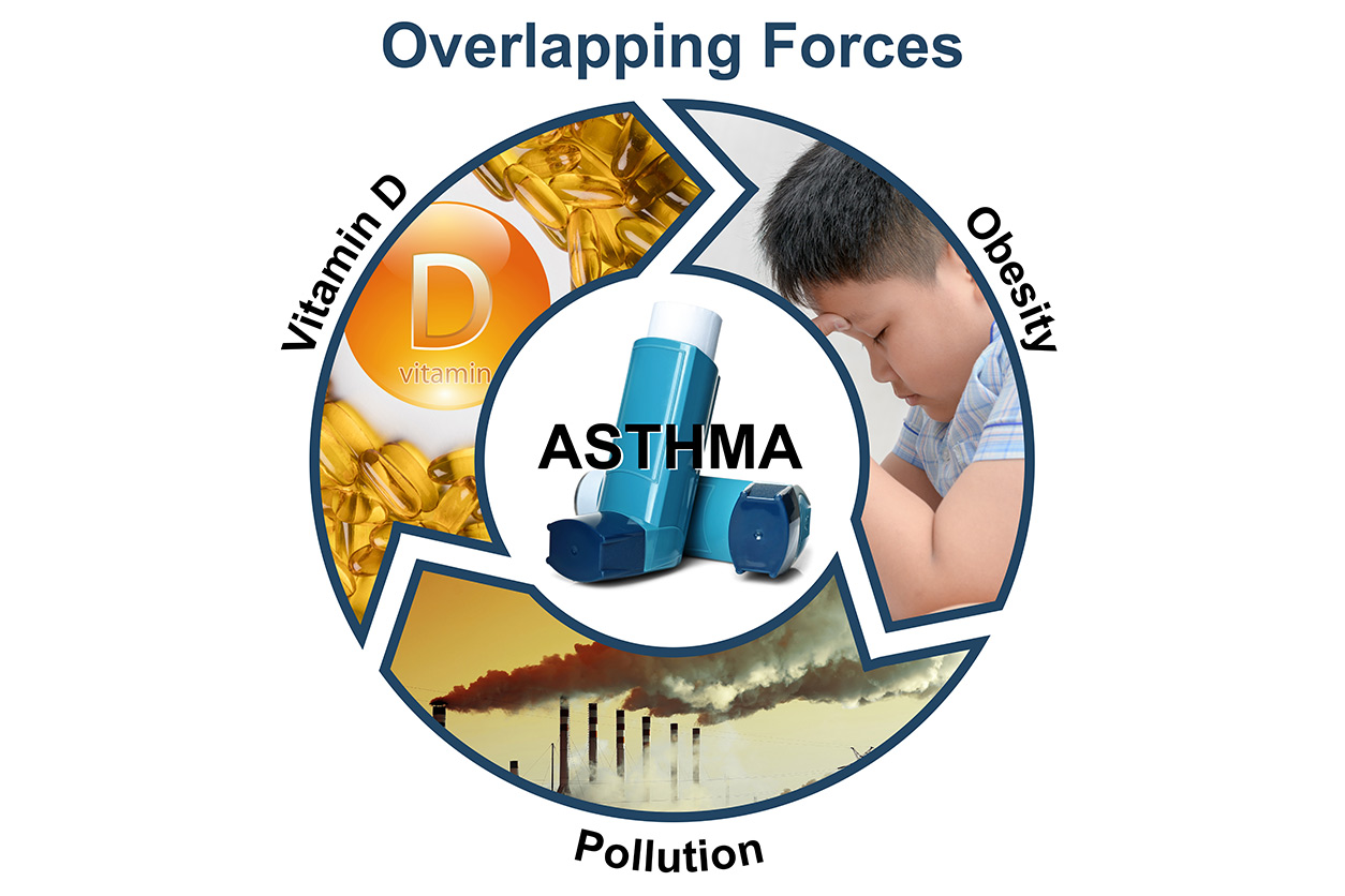 asthma 'overlapping forces' graphic