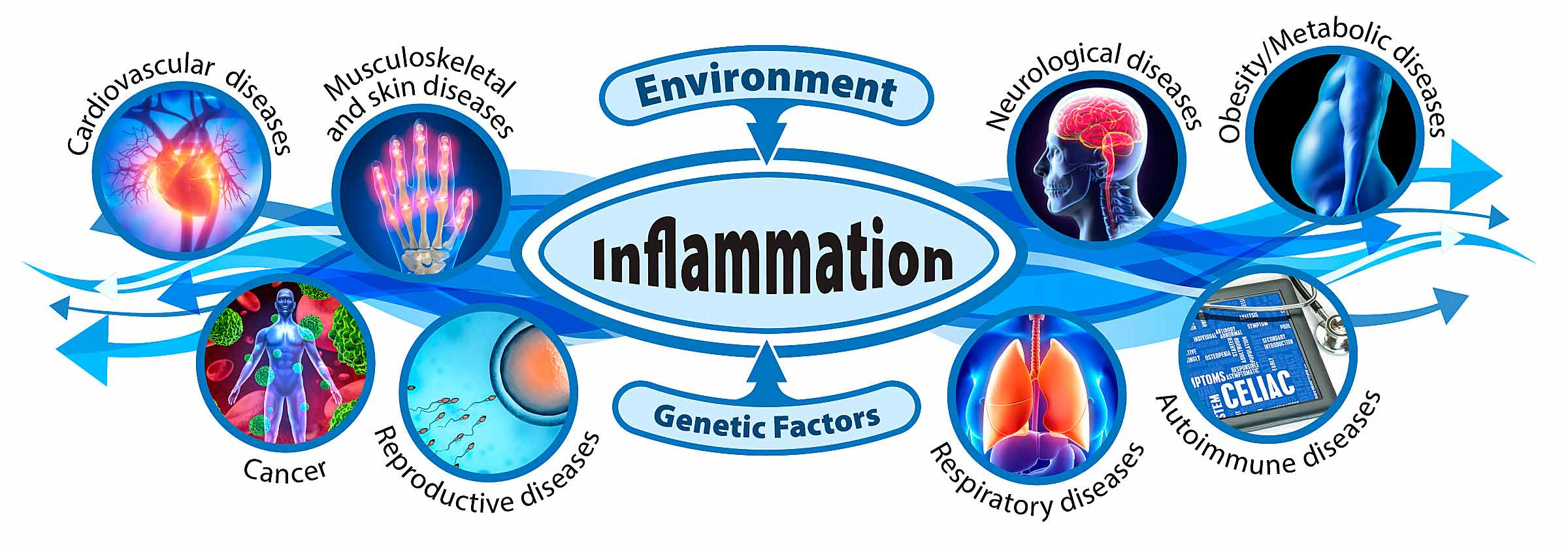 graphical representation of environmental and genetic factors contributing to various inflammatory states