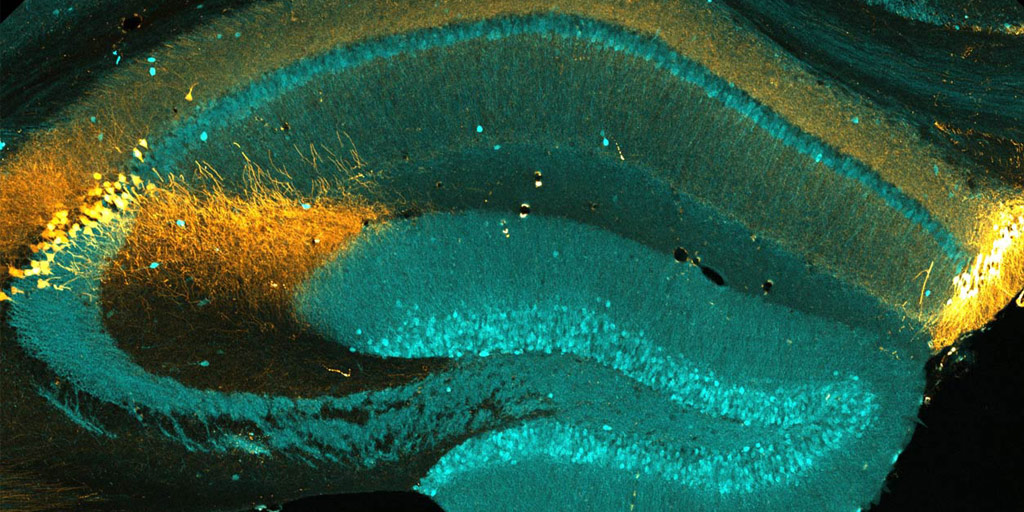 coronal section of a mouse brain hippocampal area CA2
